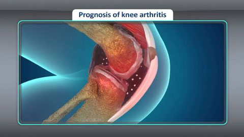 Treatment for Osteoarthritis of the Knee