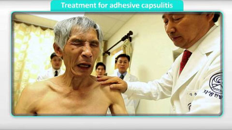 Treatment for Adhesive Capsulitis of shoulder
